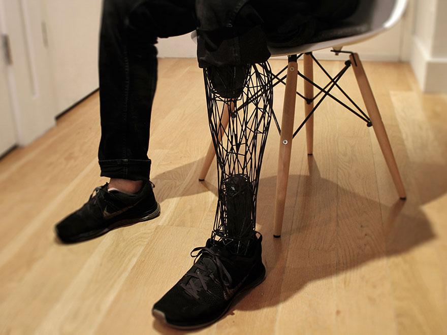 Protesi di ultima generazione in titanio di una gamba
